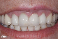 Dental Crown Before After Pictures & Images